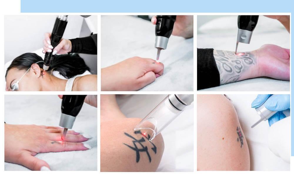 Можно ли убрать татуировку полностью