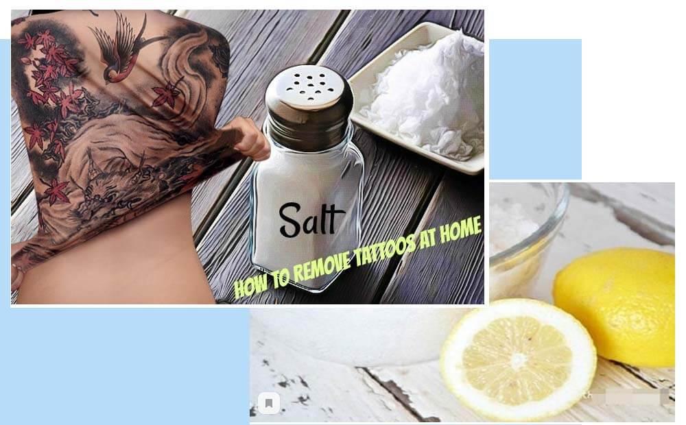 удаление татуировки солью